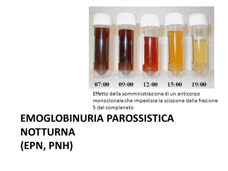EMOGLOBINURIA PAROSSISTICA NOTTURNA (EPN, PNH)