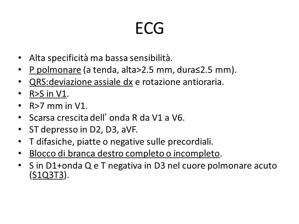 ECG Alta specificità ma bassa sensibilità.