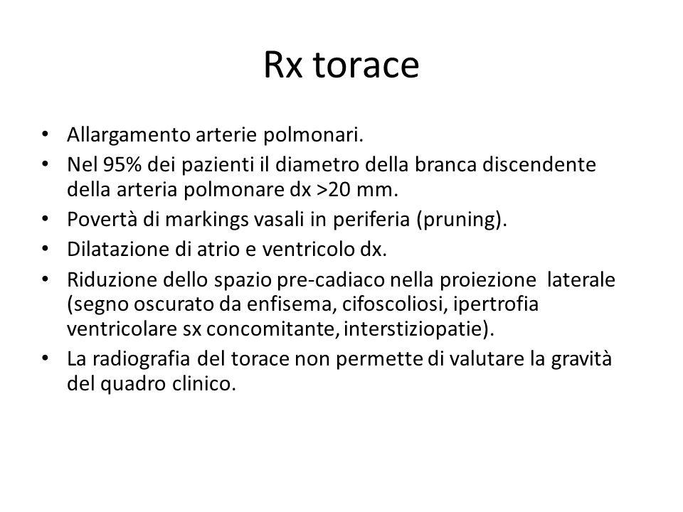 Rx torace Allargamento arterie polmonari.