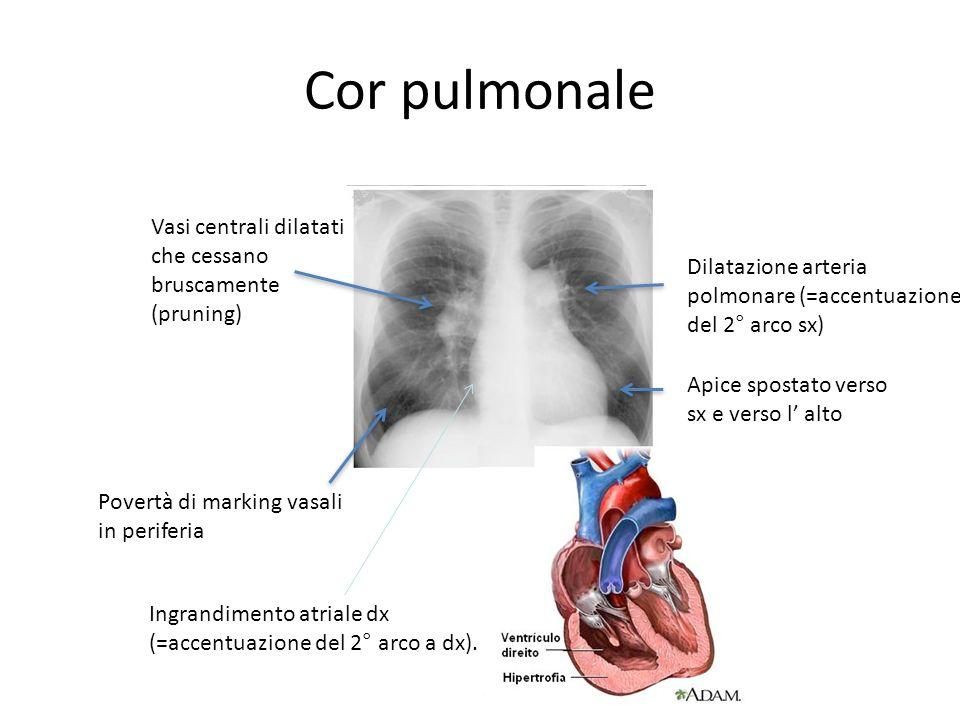 Cor pulmonale Vasi centrali dilatati che cessano bruscamente