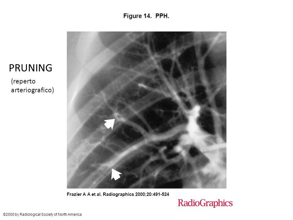 PRUNING (reperto arteriografico) Figure 14. PPH.