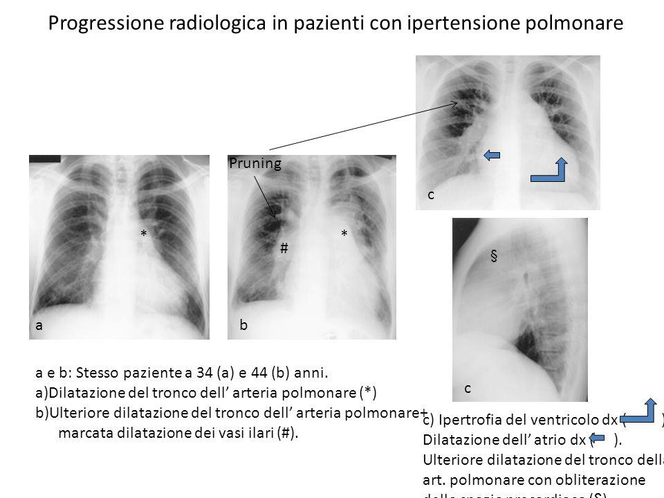 Progressione radiologica in pazienti con ipertensione polmonare