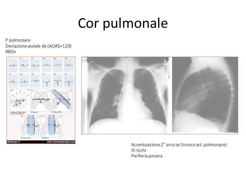 Cor pulmonale P polmonare Deviazione assiale dx (AQRS+120) BBDx
