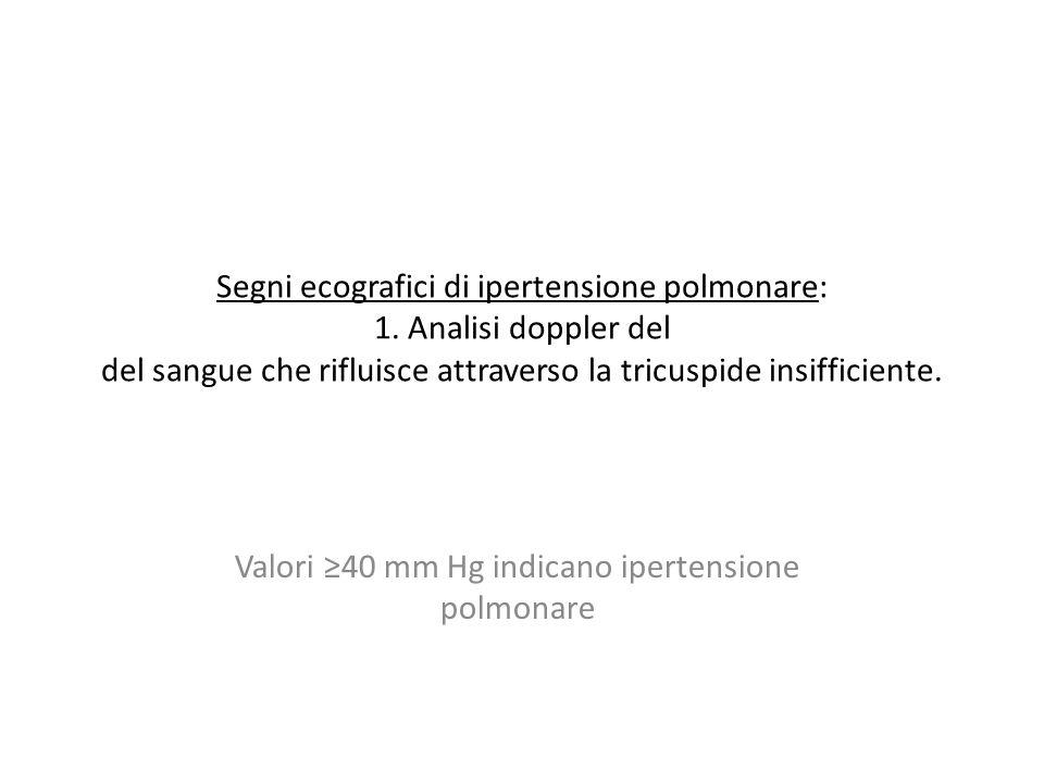 Valori ≥40 mm Hg indicano ipertensione polmonare