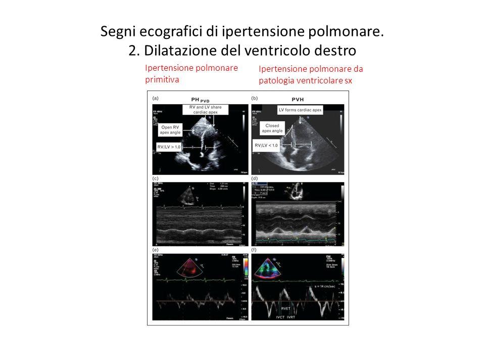 Segni ecografici di ipertensione polmonare. 2