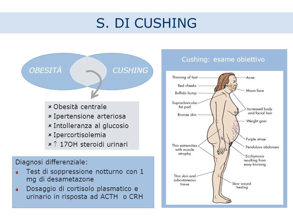 Cushing: esame obiettivo