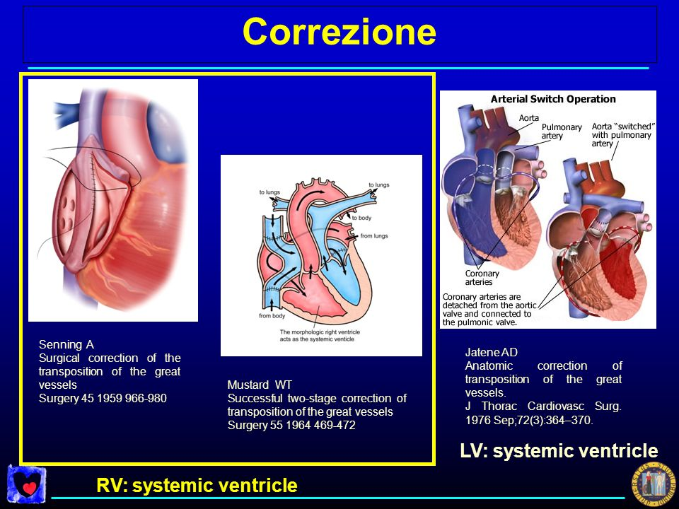 Correzione LV: systemic ventricle RV: systemic ventricle Senning A