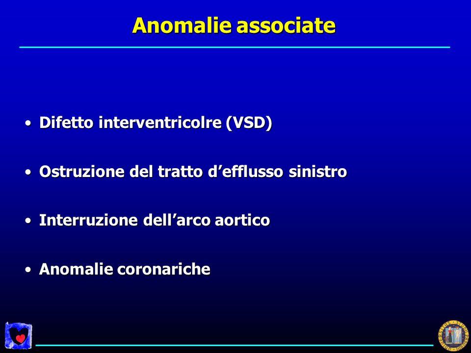 Anomalie associate Difetto interventricolre (VSD)