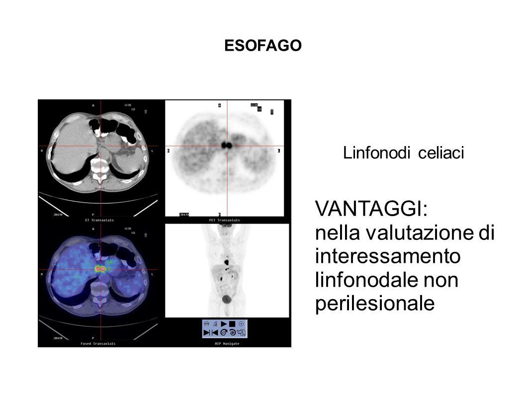 nella valutazione di interessamento linfonodale non
