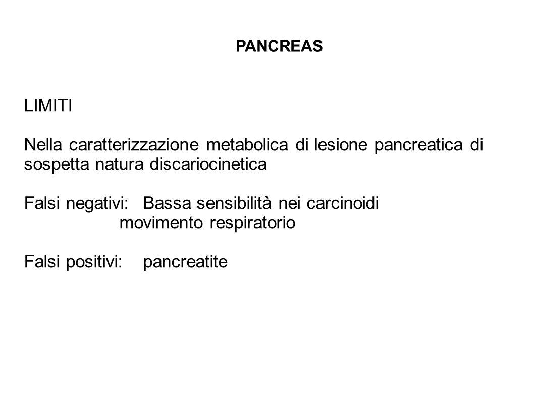 Falsi negativi: Bassa sensibilità nei carcinoidi