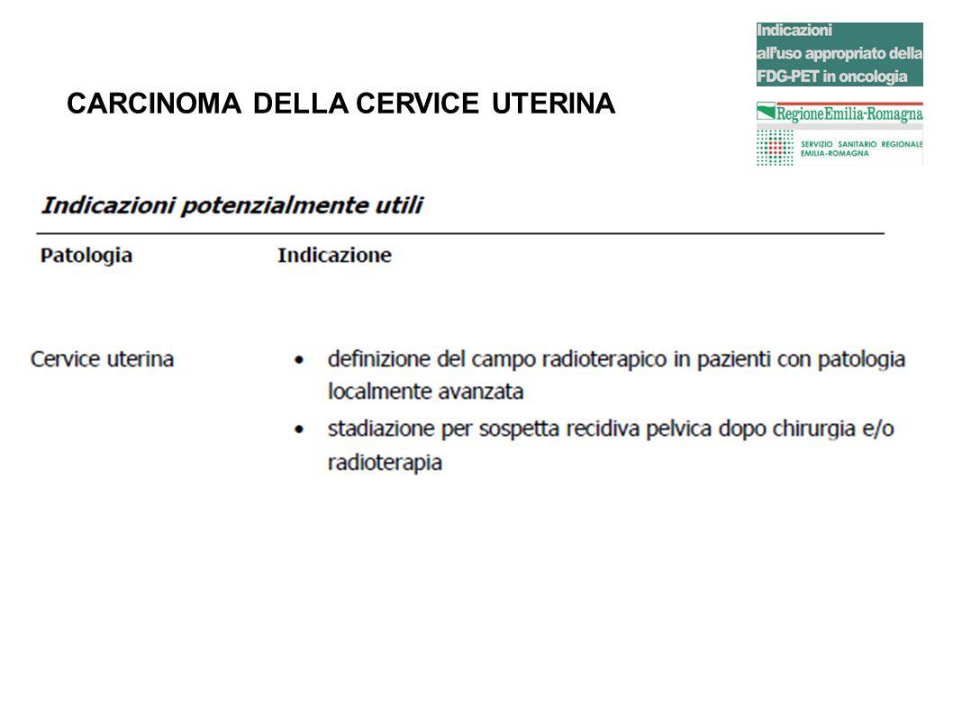 CARCINOMA DELLA CERVICE UTERINA