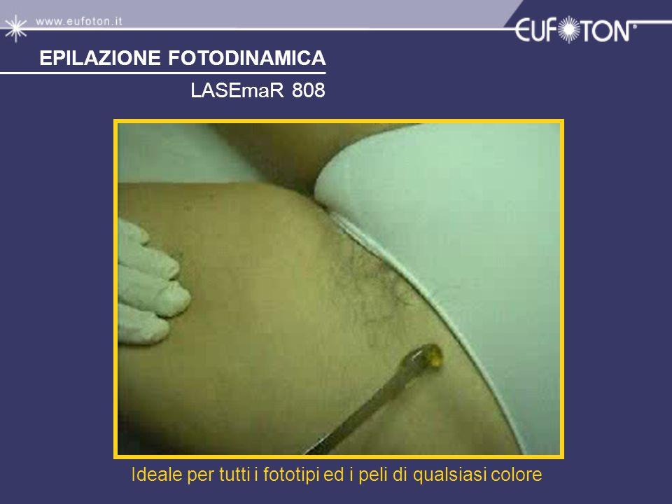 EPILAZIONE FOTODINAMICA LASEmaR 808