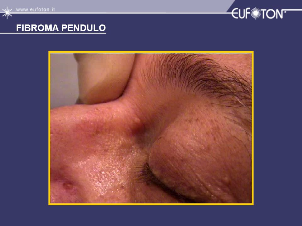 FIBROMA PENDULO