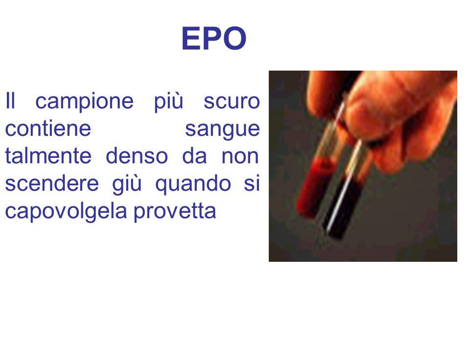EPOIl campione più scuro contiene sangue talmente denso da non scendere giù quando si capovolgela provetta.