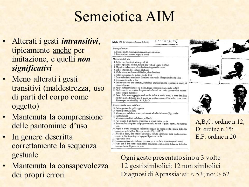 Semeiotica AIM Alterati i gesti intransitivi, tipicamente anche per imitazione, e quelli non significativi.