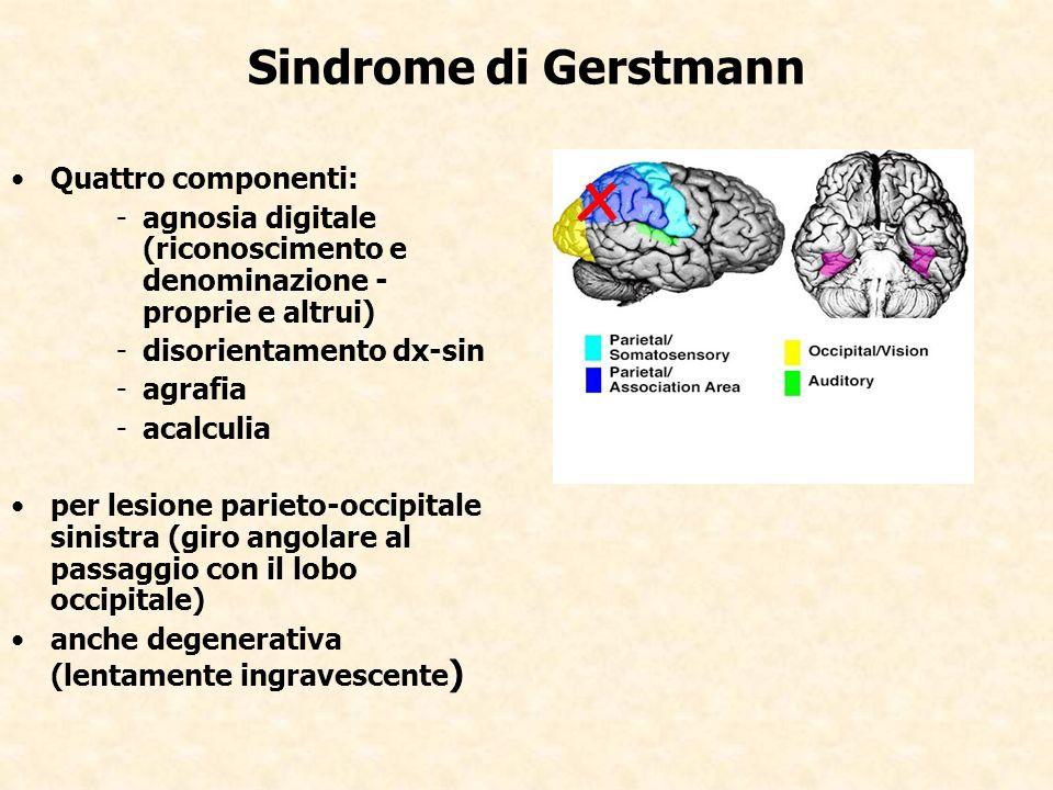 Sindrome di Gerstmann Quattro componenti: