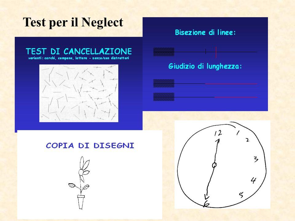 Test per il Neglect