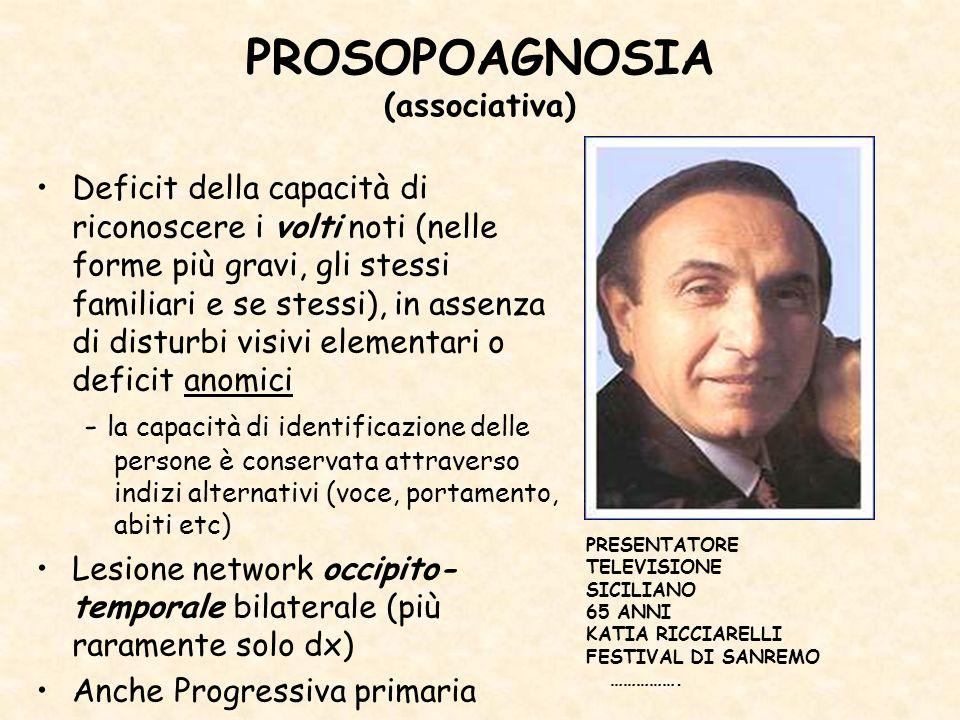 PROSOPOAGNOSIA (associativa)