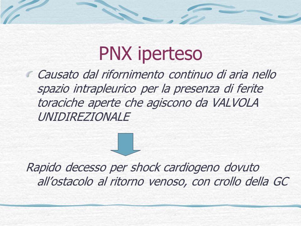 PNX iperteso