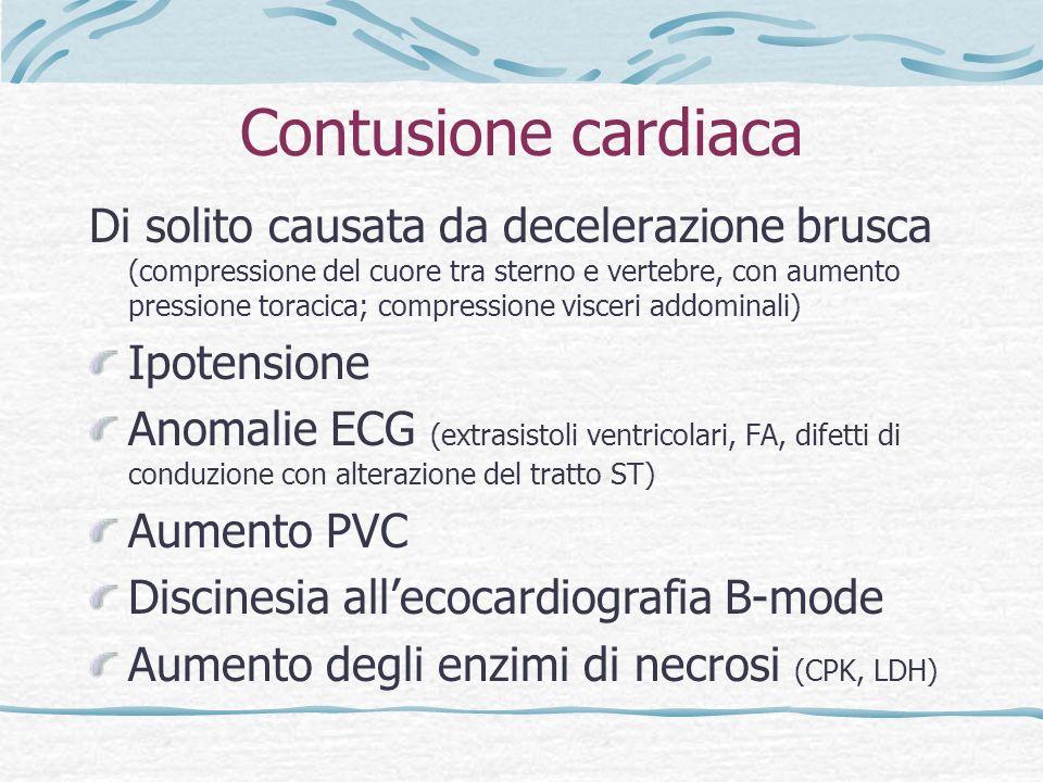 Contusione cardiaca