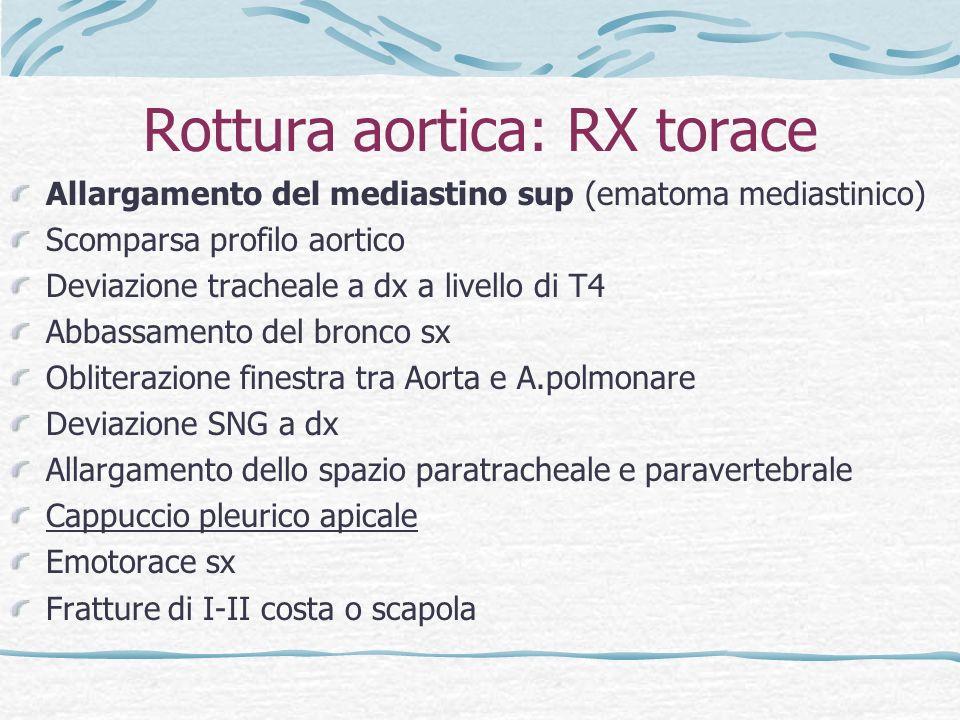 Rottura aortica: RX torace
