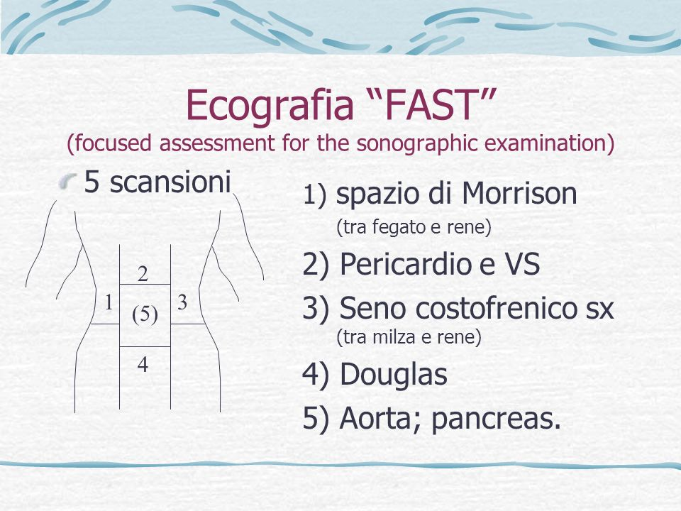Ecografia FAST (focused assessment for the sonographic examination)