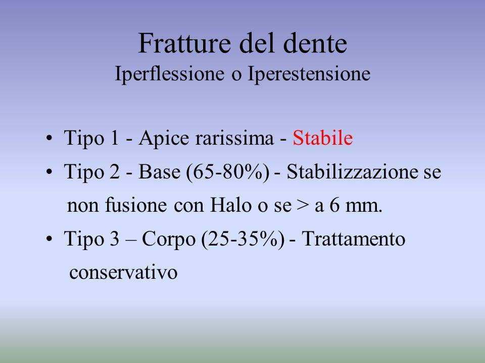 Fratture del dente Iperflessione o Iperestensione
