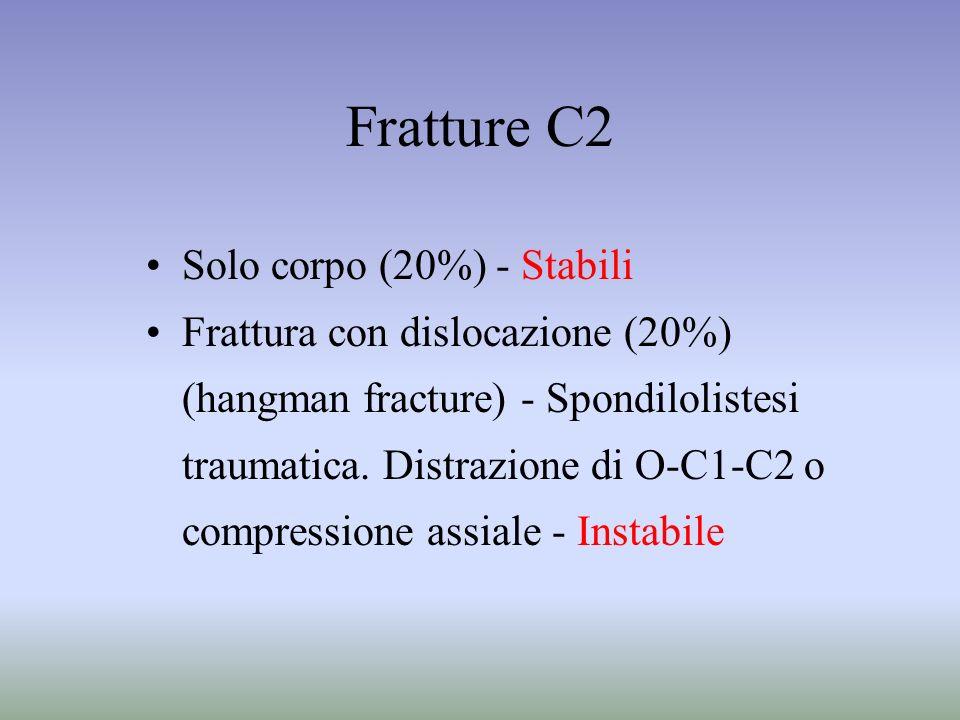 Fratture C2 Solo corpo (20%) - Stabili Frattura con dislocazione (20%)
