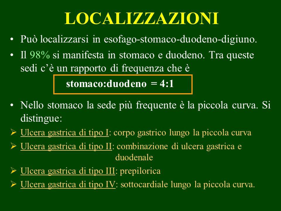 LOCALIZZAZIONI Può localizzarsi in esofago-stomaco-duodeno-digiuno.