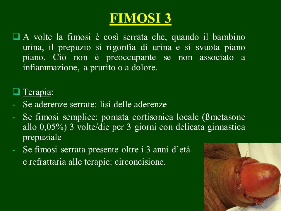 FIMOSI 3