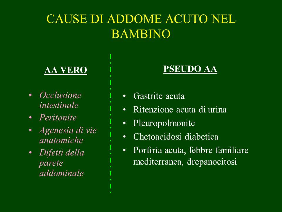 CAUSE DI ADDOME ACUTO NEL BAMBINO