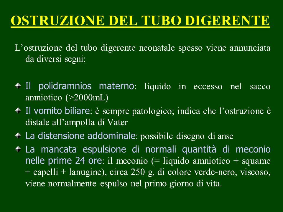 OSTRUZIONE DEL TUBO DIGERENTE