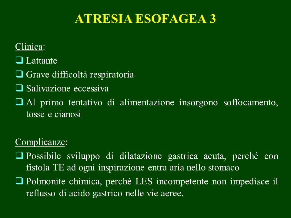 ATRESIA ESOFAGEA 3 Clinica: Lattante Grave difficoltà respiratoria