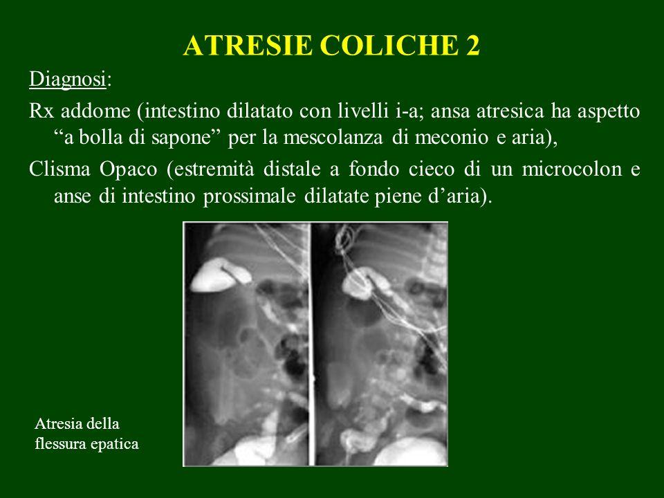 ATRESIE COLICHE 2 Diagnosi: