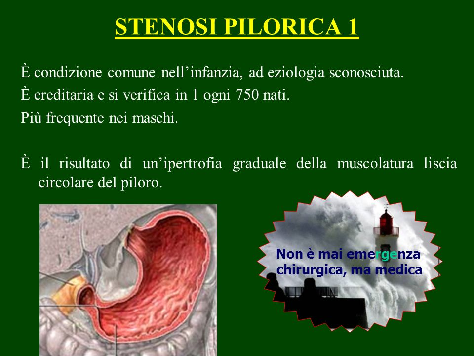 STENOSI PILORICA 1 È condizione comune nell'infanzia, ad eziologia sconosciuta. È ereditaria e si verifica in 1 ogni 750 nati.