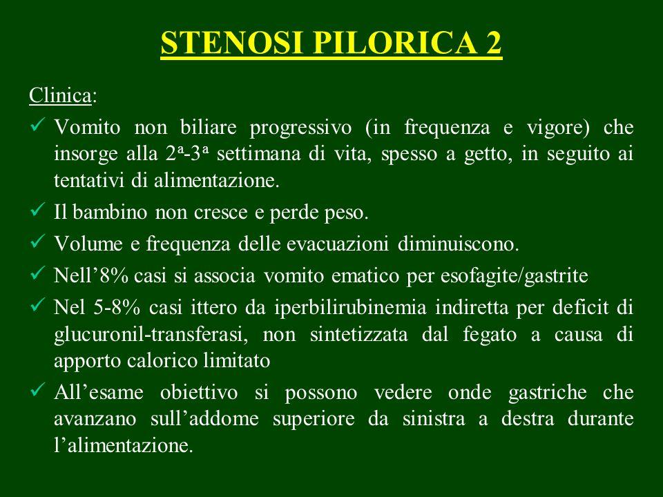 STENOSI PILORICA 2 Clinica: