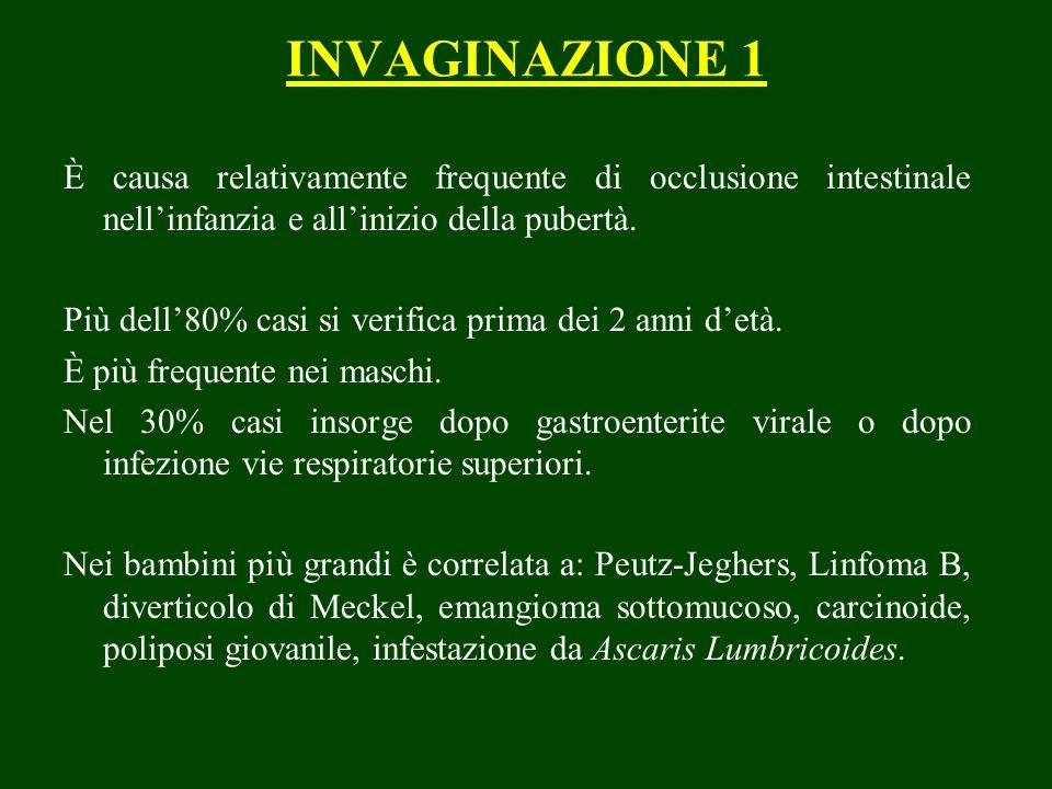 INVAGINAZIONE 1 È causa relativamente frequente di occlusione intestinale nell'infanzia e all'inizio della pubertà.