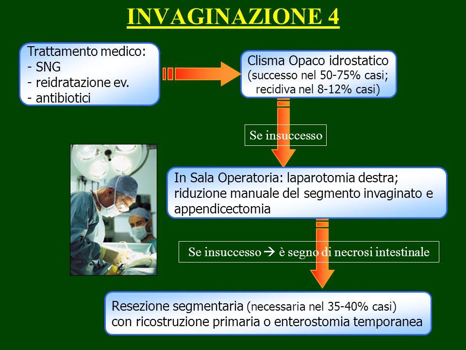 INVAGINAZIONE 4 Trattamento medico: - SNG Clisma Opaco idrostatico