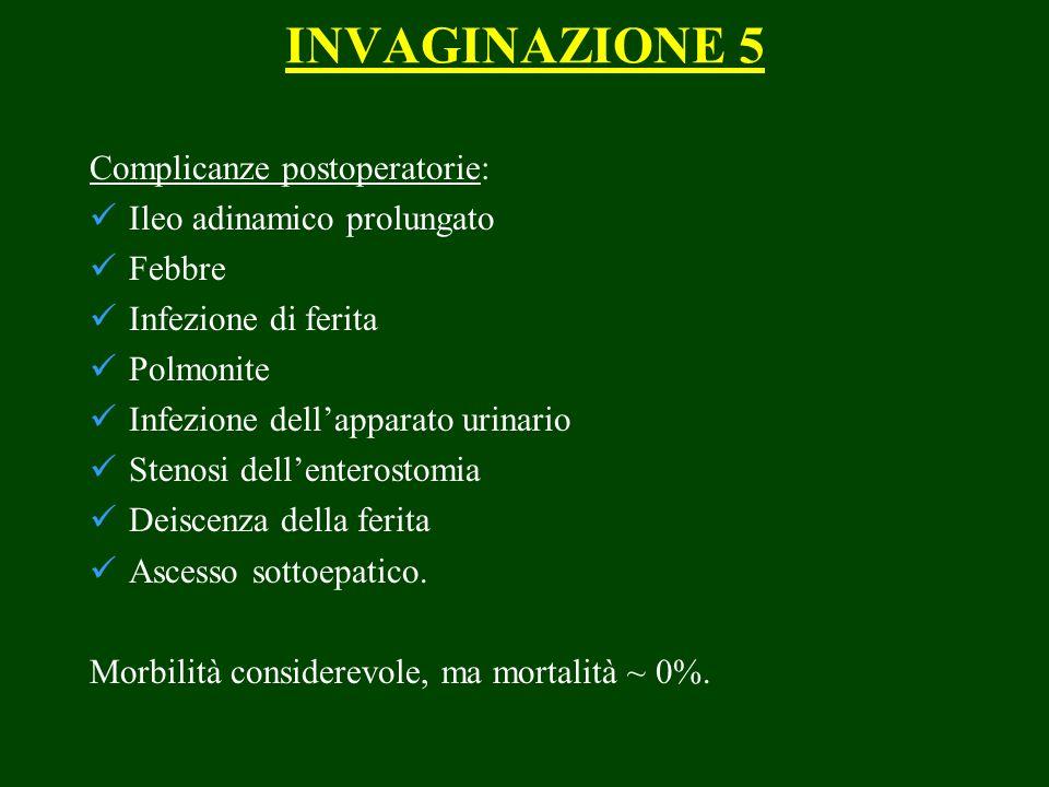 INVAGINAZIONE 5 Complicanze postoperatorie: Ileo adinamico prolungato