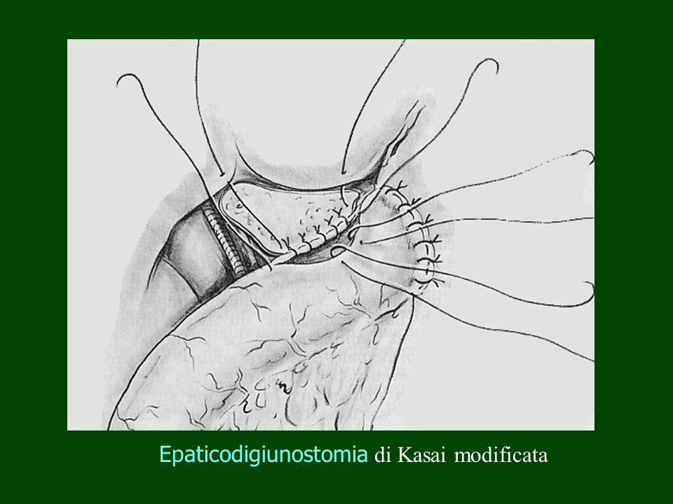 Epaticodigiunostomia di Kasai modificata