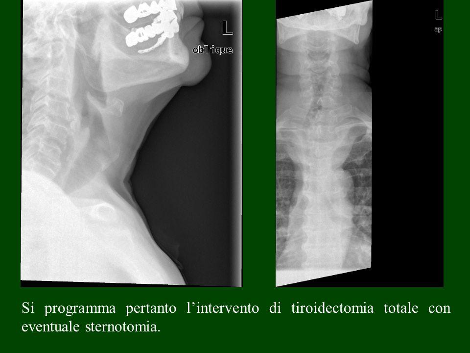 Si programma pertanto l'intervento di tiroidectomia totale con eventuale sternotomia.