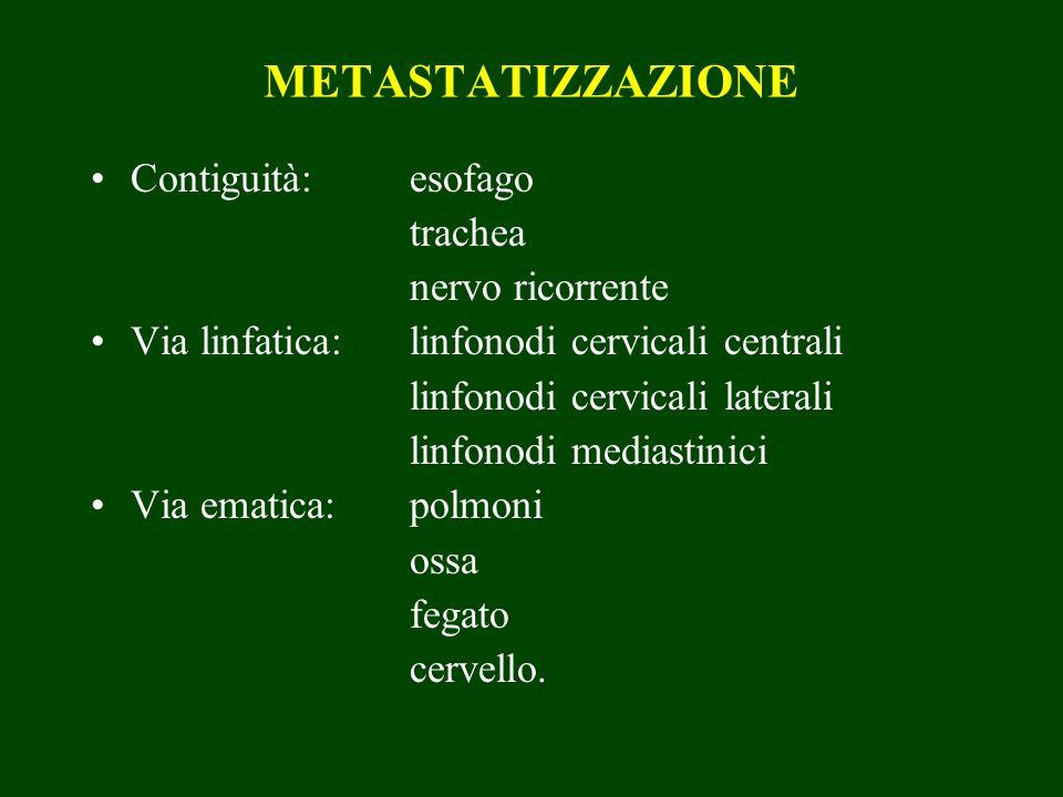 METASTATIZZAZIONE Contiguità: esofago trachea nervo ricorrente