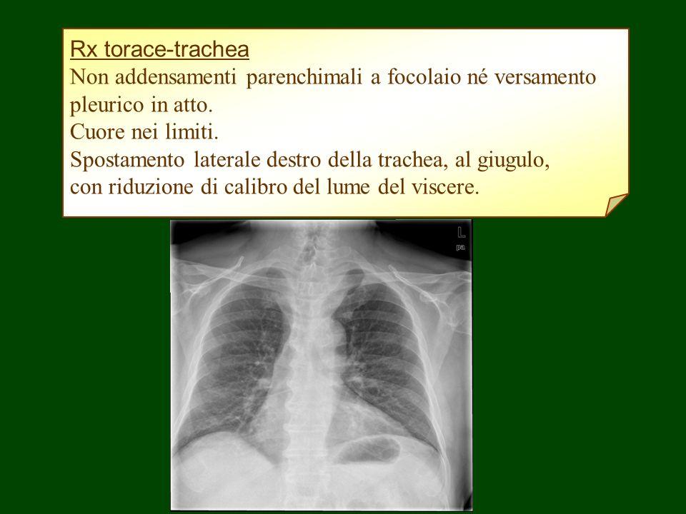 Rx torace-trachea Non addensamenti parenchimali a focolaio né versamento. pleurico in atto. Cuore nei limiti.