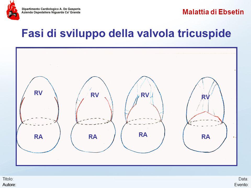 Fasi di sviluppo della valvola tricuspide