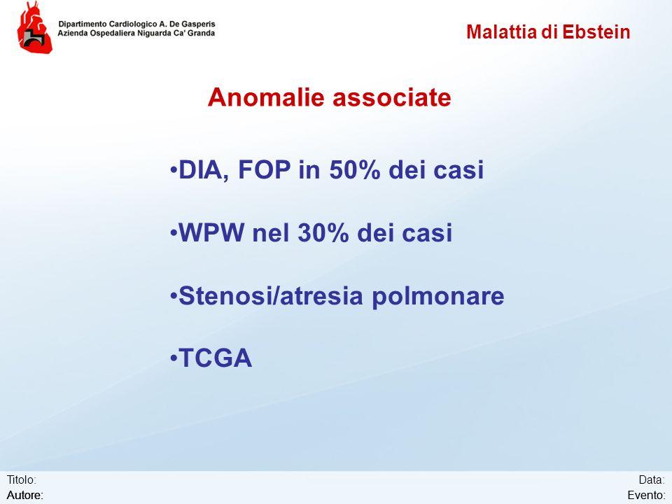 Stenosi/atresia polmonare TCGA