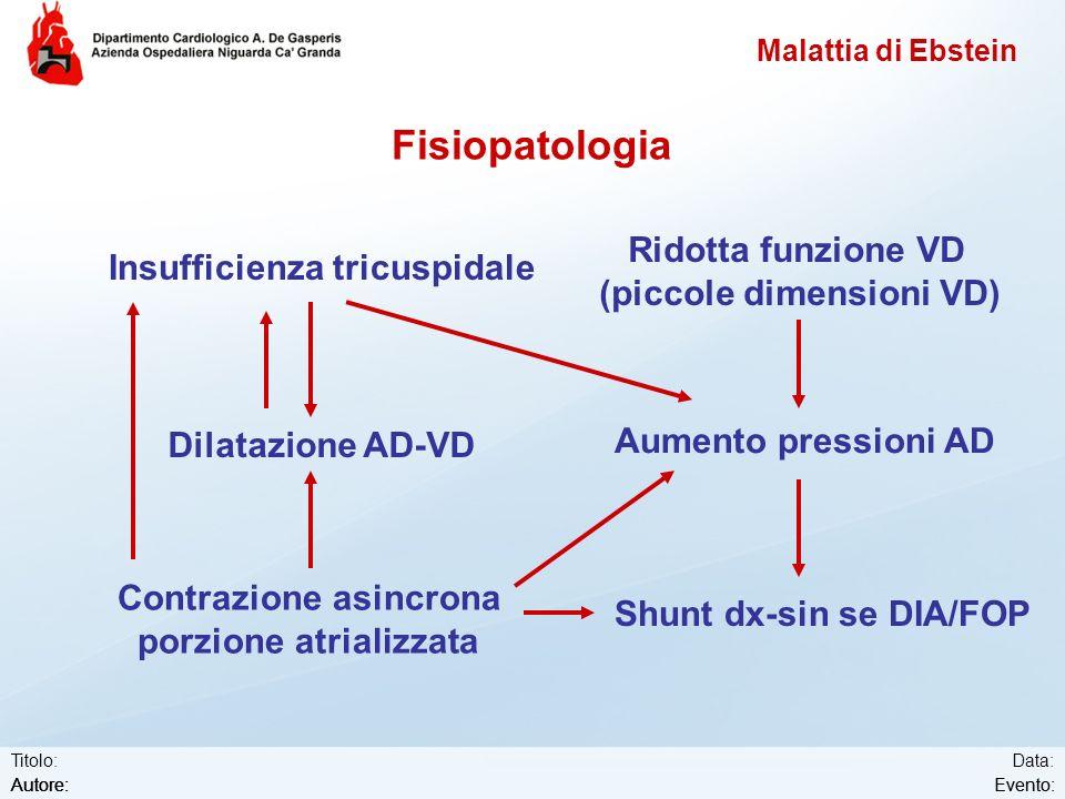 Fisiopatologia Ridotta funzione VD Insufficienza tricuspidale
