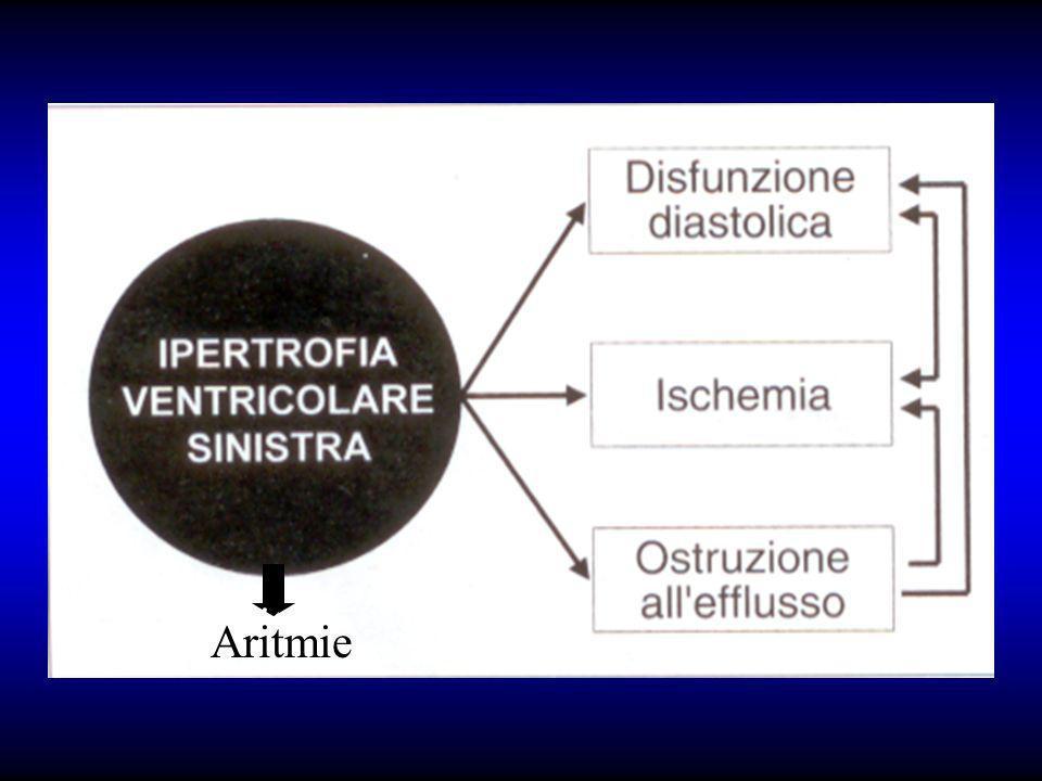 Aritmie Aritmie Aritmie Aritmie