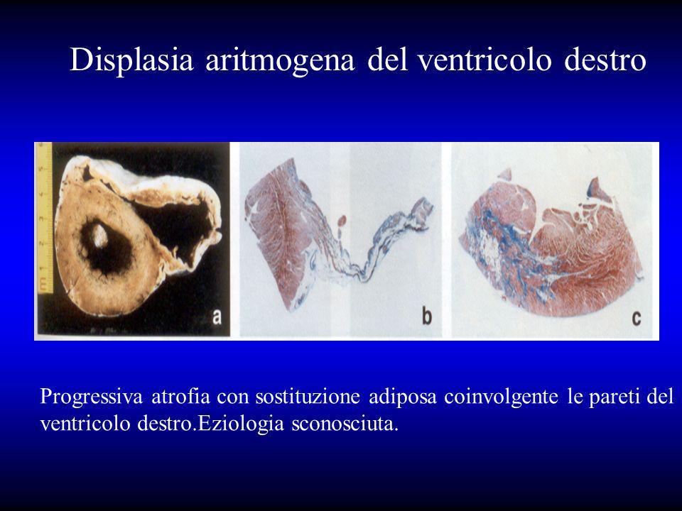 Displasia aritmogena del ventricolo destro