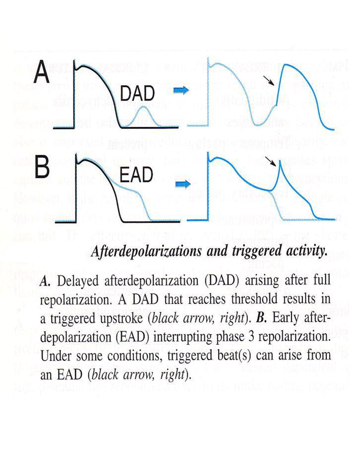 EAD interrompe la fase 3 di ripolarizzazione