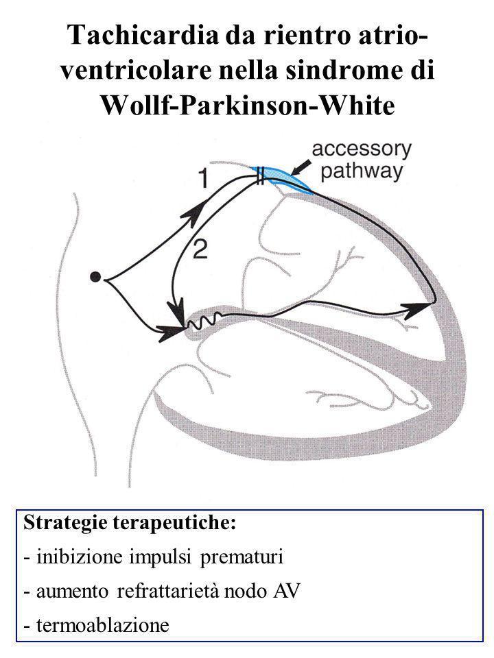 Tachicardia da rientro atrio-ventricolare nella sindrome di Wollf-Parkinson-White